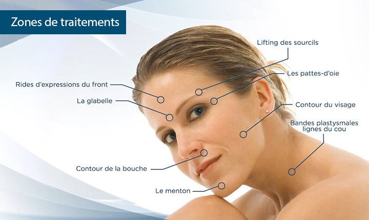 Clinimedspa - Diagramme sites d'injection de Botox (bouche, front, yeux, visage, menton)