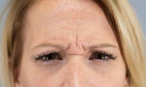 Clinimedspa - photo avant injection de Botox zone de la glabelle