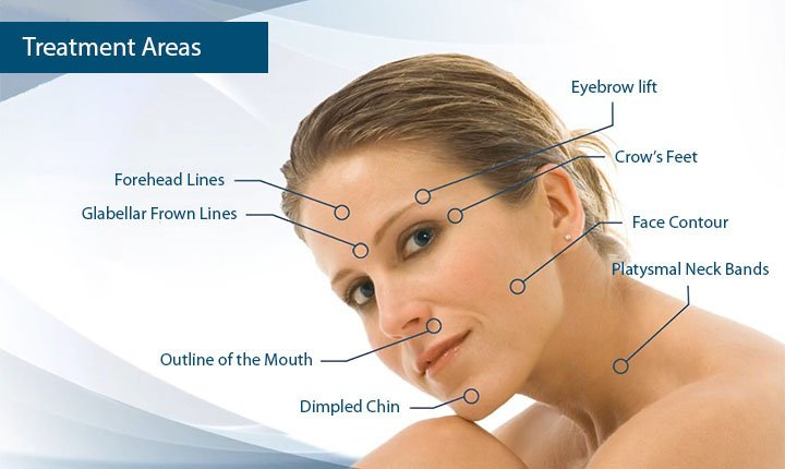 Botox injections Treatment areas